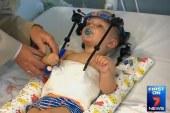 U saobraćajnoj nesreći, bebi lobanja odvojena od kičme