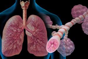 astma-ilustracija