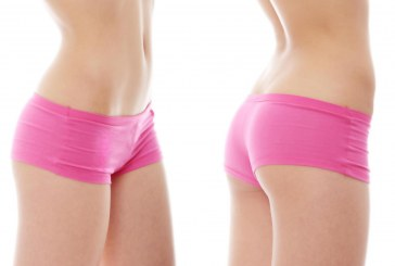 Laserska liposukcija