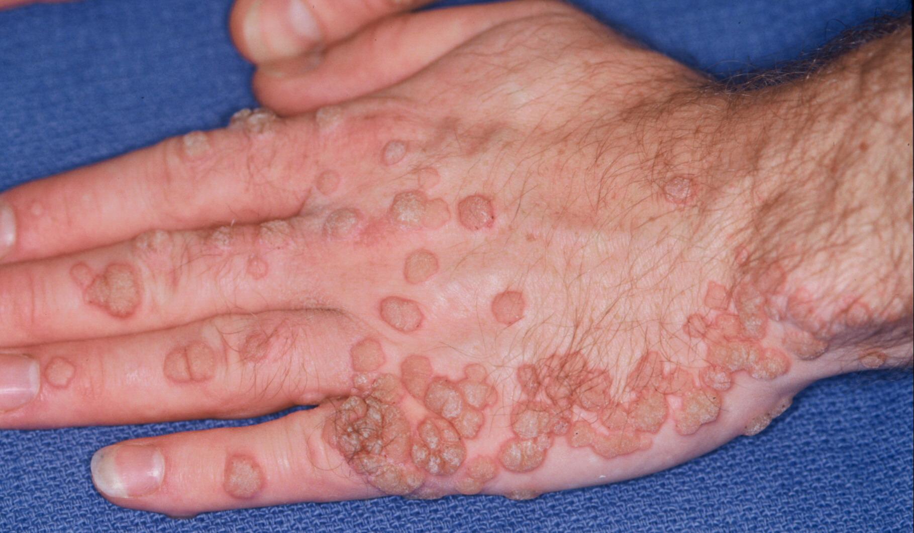 Bradavice i kako ih odstraniti prirodnim lekom