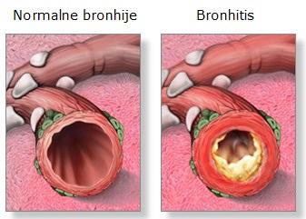 bronhije