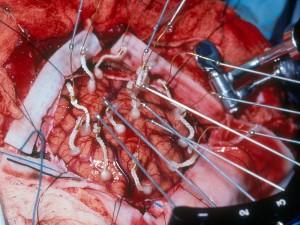 hirursko-lecenje-epilepsije