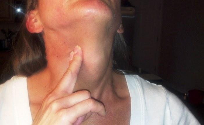 Otečene žlezde – guke