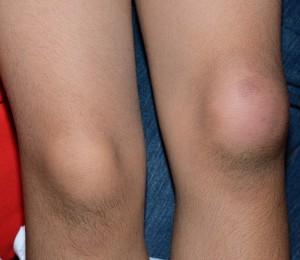 otekline-ili-guke-na-kolenu