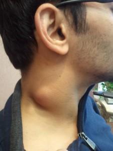 guke-po-vratu