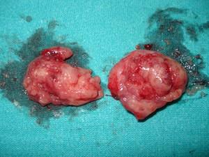 tonzilektomija-izvadjeni-krajnici