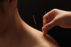 Šta treba da znate o akupunkturi?