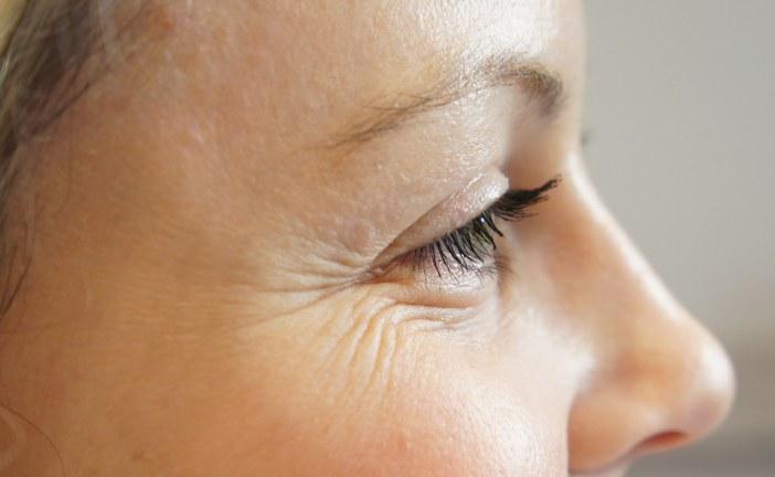 Kako ukloniti bore oko očiju?