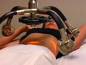 laser-liposukcija