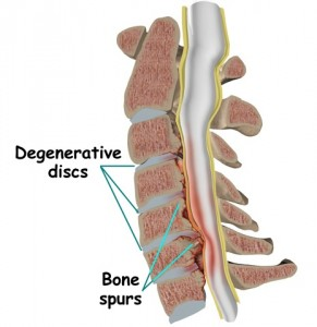 degenerativne promene na vratu