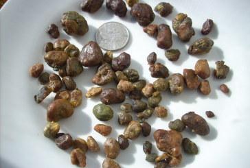 Kamen u bubregu – bubrežni kamenac