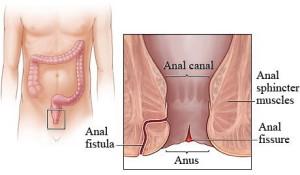 analna fisura