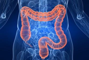Katar u crevima – kolitis i enterokolitis / upala creva