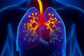 Upala dušnika – bronhitis, bronhalni katar
